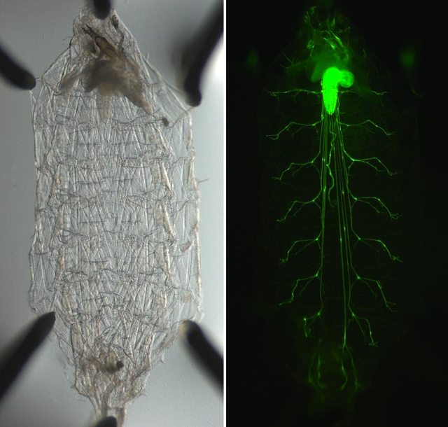 GFP expressing motor neurons in Drosophila larvae. I did not do this btw.